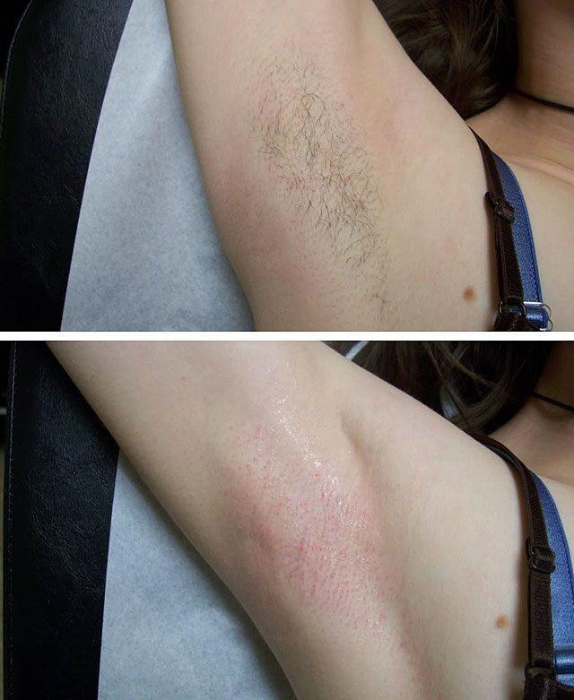 Убрать волосы на ногах навсегда в домашних условиях отзывы